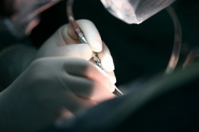 Лечение аневризмы брюшной аорты