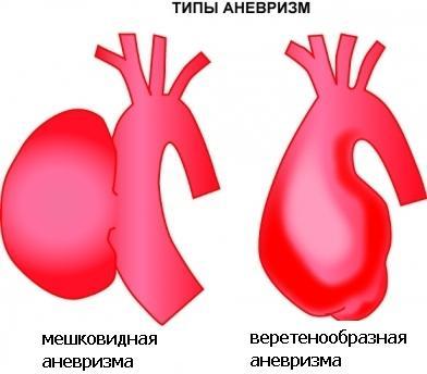 Виды аневризмы брюшной аорты
