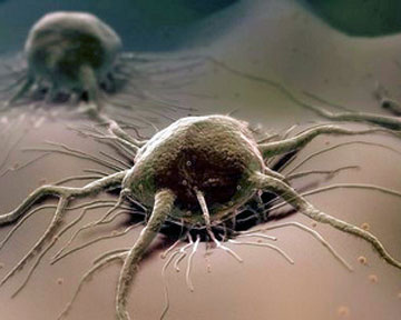 Израильские ученые случайно открыли новое средство против рака