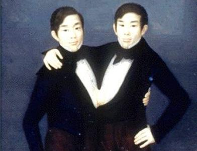 Двести лет назад на свет появились первые сиамские близнецы
