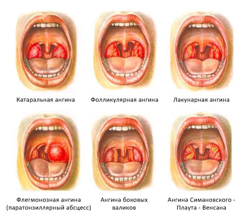Классификация ангин