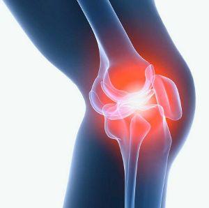Болезнь Кенига (Рассекающий остеохондроз суставных поверхностей)