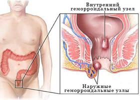 Как избавиться от геморроя временно перед сексом