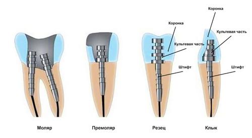 Установка штифта в зависимости от типа зуба