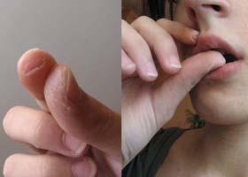 Лечение болезней нервной системы народными средствами