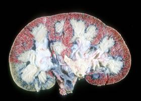 Симптомы и лечение гидронефроза