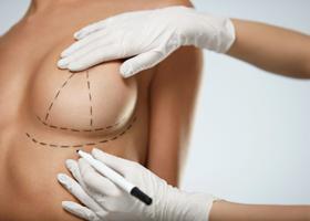 Коррекция формы и размеров молочных желез (маммопластика)