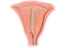 Выбор контрацепции при различных заболеваниях