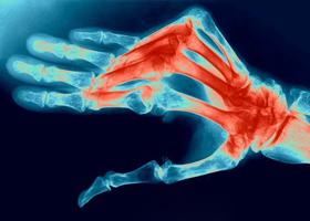 Лечение полиартрита препаратами heel