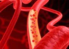 Новый метод профилактики атеросклероза