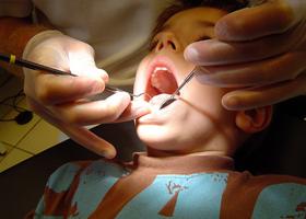 Дети - преодолеваем страх лечения зубов