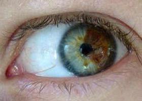 Онкология глаза