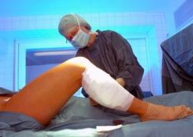 Лечение хронической венозной недостаточности