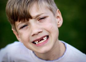Молочные зубы у детей и их смена