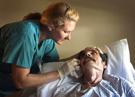 Синдром Гийена-Барре (острый полирадикулит)