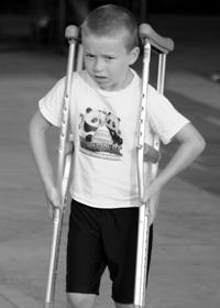 Лечение болезни Пертеса у детей