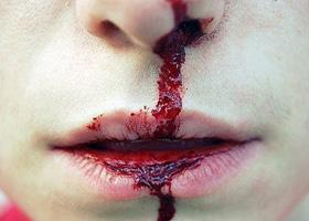 Кровотечения из носа у детей