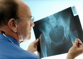 Тазобедренный сустав. Переломы шейки бедра