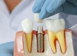 Мостовидные протезы, зубные коронки и имплантаты (несъемное протезирование)