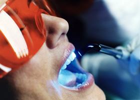 Лазерное отбеливание зубов дома