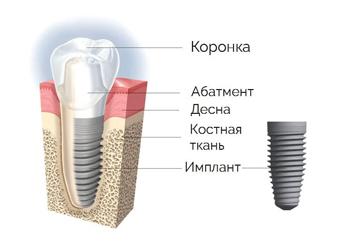 Устройство зубного имплантата