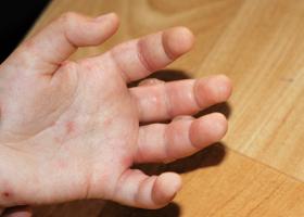 Волдыри на руке