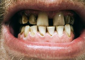 Темная зубная эмаль
