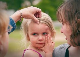 Шишки на коже у маленьких детей