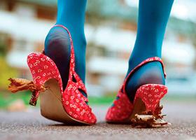 Неправильная походка и перемежающая хромота