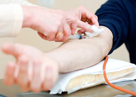 Люди с четвертой группой крови больше подвержены деменции
