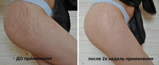 Фото до и после применения крема от растяжек с таблетками мумие