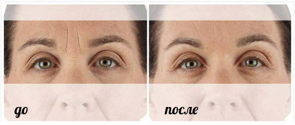 xeomin_before_after_2