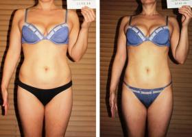 Редуксин Лайт, фото до и после применения