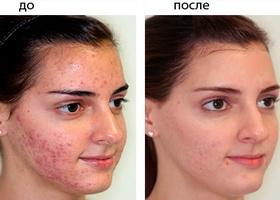 Фото до и после применения Зенерита на протяжении 10 недель.