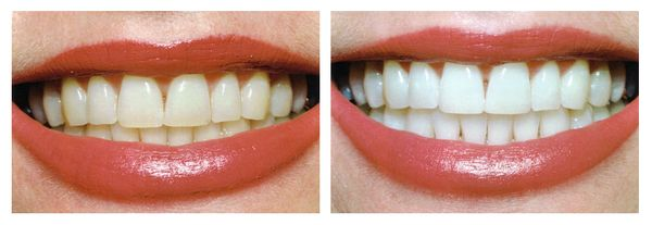 Сода и перекись водорода для зубов