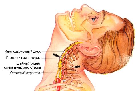 Как избавиться от остеофитов шейного отдела позвоночника