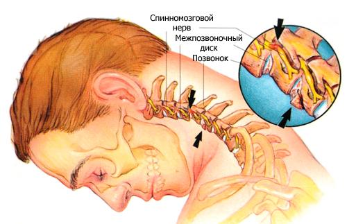 Схема устройства шейного отдела позвоночника