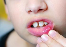 Стоматит на губе, фото