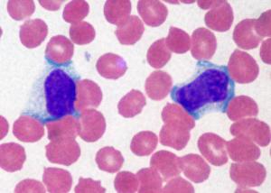 Мононуклеары в крови у ребенка, фото