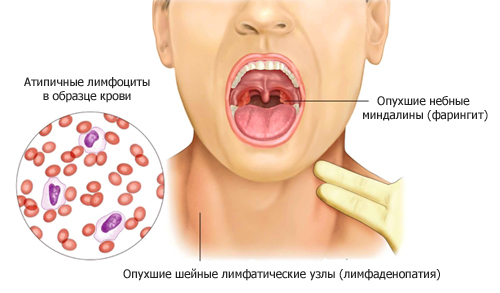 Симптомы вируса Эпштейна-Барра