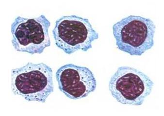 Широкоплазменные лимфоциты у ребенка, фото