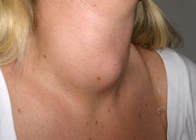 Увеличенная щитовидка, фото