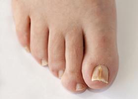 Как выглядит грибок ногтей на ногах, фото