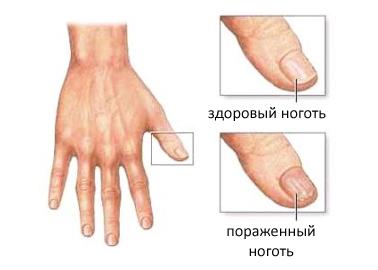 Грибок ногтей на фото