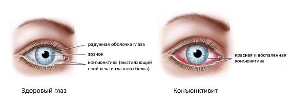 Отличия здорового глаза и больного