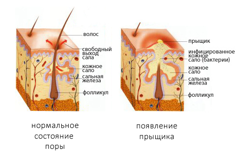 Строение прыщика в коже