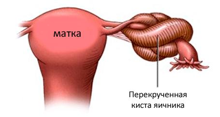 Перекрученная киста яичника