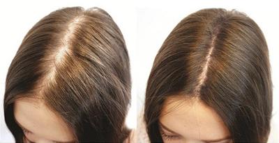 Дарсонваль для волос, фото до и после использования