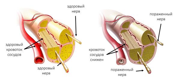 Кровоток и нервы у здорового человека и при полинейропатии
