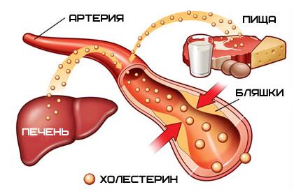 какие статины пить при повышенном холестерине